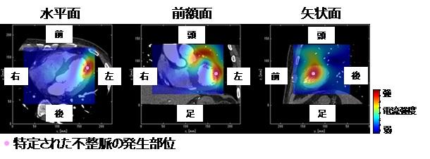 [画像]図2 臓に流れる電流の3次元分布画像(心磁図)と心臓CT画像の合成画像。カラーマップは心磁図に対応しており、赤い領域は電流が強い領域です。