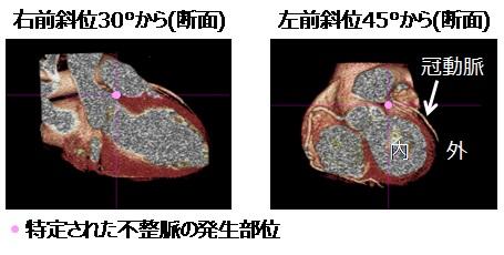 [画像]図4 心臓の3次元モデル上で特定された不整脈の発生部位。不整脈の発生部位が心臓の外側に特定されています。