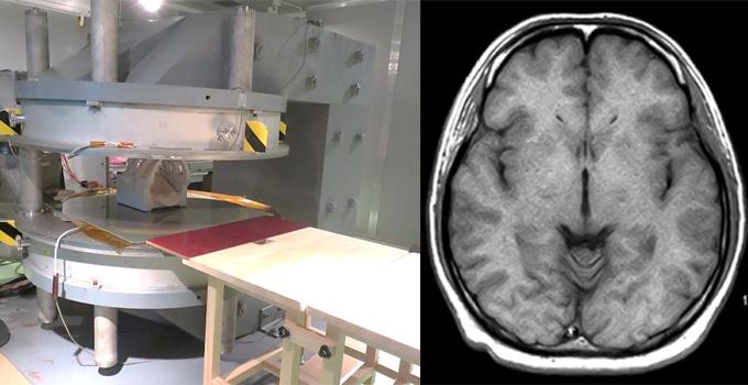 図1 MgB2超電導磁石の外観および撮像した人体頭部の断面画像の一例